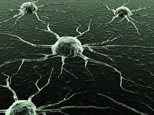 ¿Se puede tener un linfoma y no saberlo?