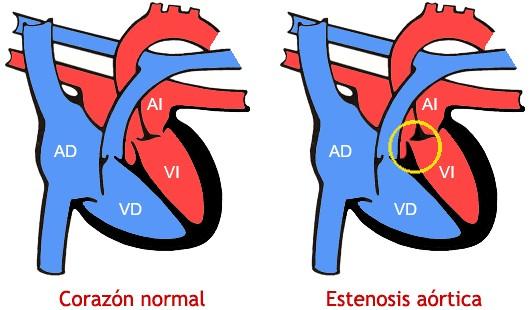 Valvulopatía aórtica (estenesosis verticada severa)