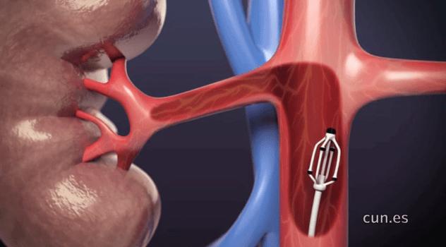 Tratamiento de la hipertensión arterial refractaria, Enfermedades y su tratamiento