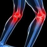 Tratamiento y alivio de los síntomas en la menopausia