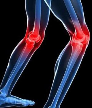Tratamiento de la artrosis con células madre