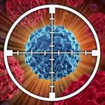 Uso de la toxina botulínica contra la migraña crónica