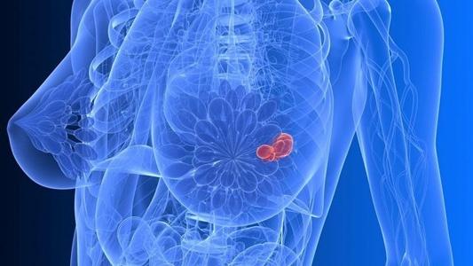 Vacunas contra el cáncer de mama