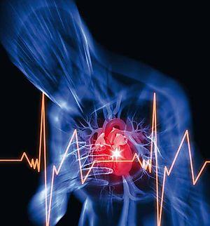 Insuficiencia cardiaca, cómo hacerle frente