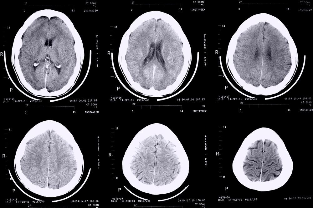 La epilepsia y sus tratamientos