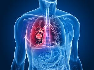 Fibrosis pulmonar, últimos tratamientos disponibles, Enfermedades y su tratamiento