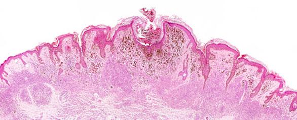 Tratamientos para el melanoma, Enfermedades y su tratamiento