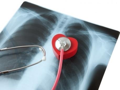 ¿Arritmia cardiaca qué es?