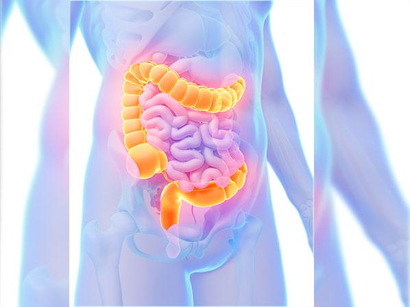 ¿El Cáncer de colon puede ser hereditario?