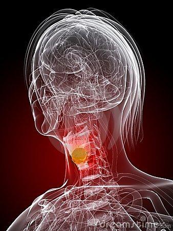 El cáncer de laringe