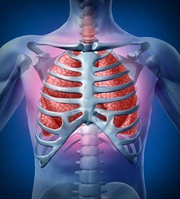 Cáncer de pulmón, Enfermedades y su tratamiento