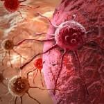 El cáncer de hígado, colangiocarcinoma y hepatocarcinoma
