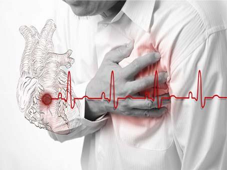 Síntoma de un infarto ¿qué debemos hacer?
