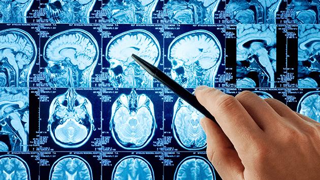 Personalidad y hemisferios cerebrales