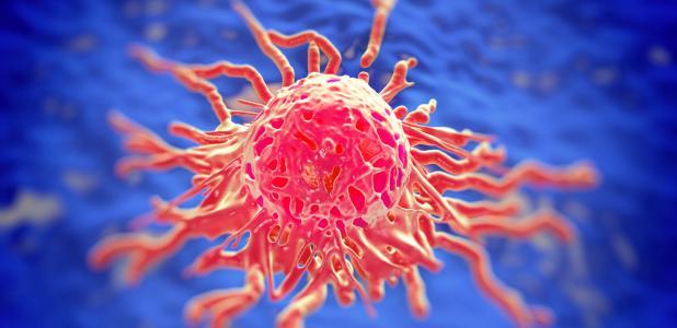 Diseminación del cáncer de mama
