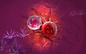 Prevención de cáncer de colon: ventajas de la colonoscopia con cápsula II