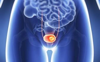 Prevención de cáncer de útero con la vacuna del papiloma humano