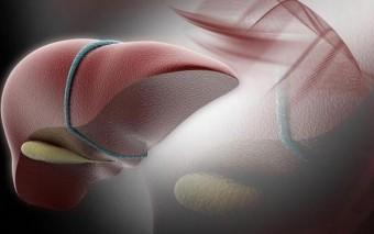 La cirugía laparoscópica aplicada al trasplante hepático por primera vez en España